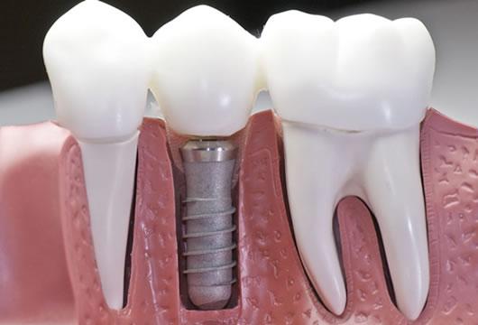 Cabinet stomatologic Buzau - CentralDent